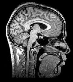 Le décryptage des symptômes du COVID long est lent et laborieux, tant pour les malades que pour leurs médecins